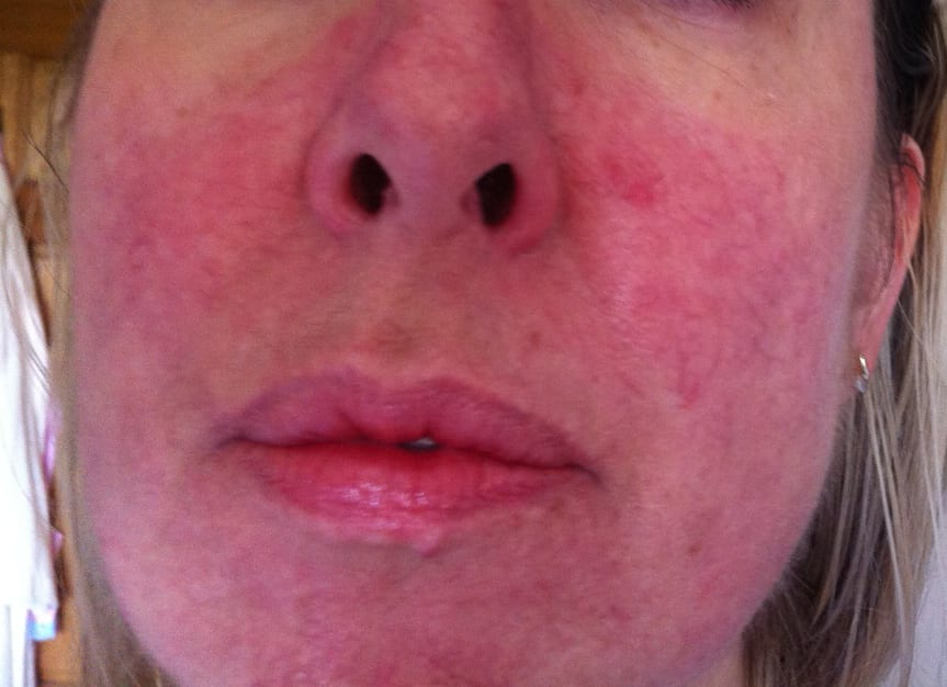 Best Way To Treat Cystic Acne At Home