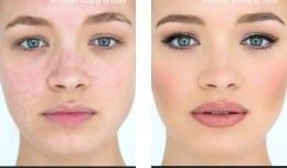 face-before-after-permanent-makeup-london-dunja