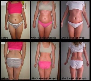 slimmer after each treatment